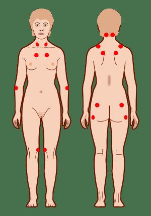 Tender points Aposentadoria por Fibromialgia - Advocacia Alves