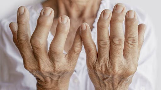 Artrite reumatoide aposentadoria