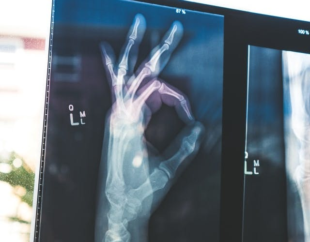 x-ray of a hand doing an 'OK'