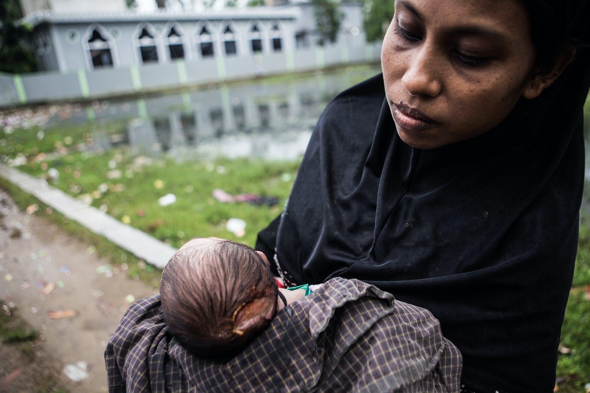 Une femme montre son nouveau né blessé par une balle des forces armés birmanes