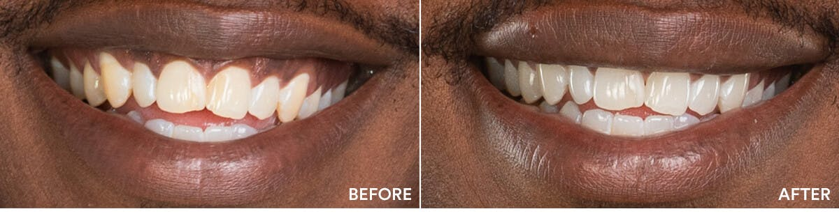 before and after teeth whitening 1