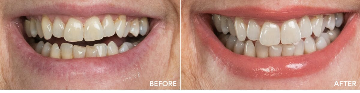 before and after teeth whitening 3