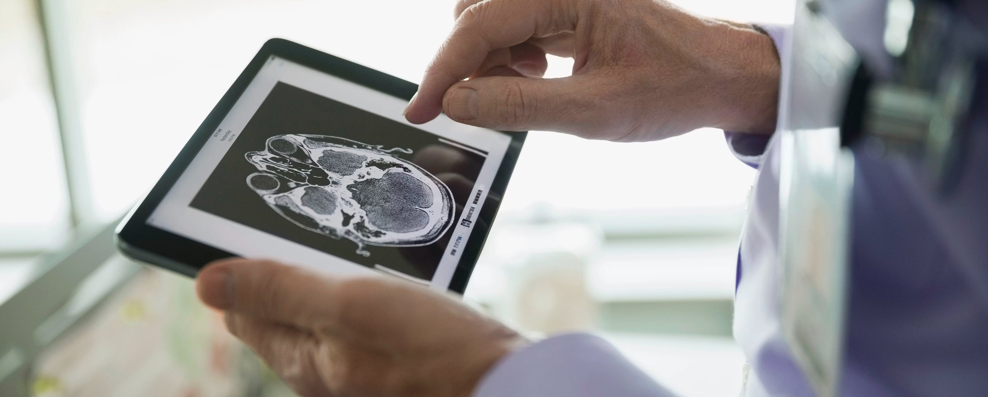 Doctor looking at a brain scan on an iPad