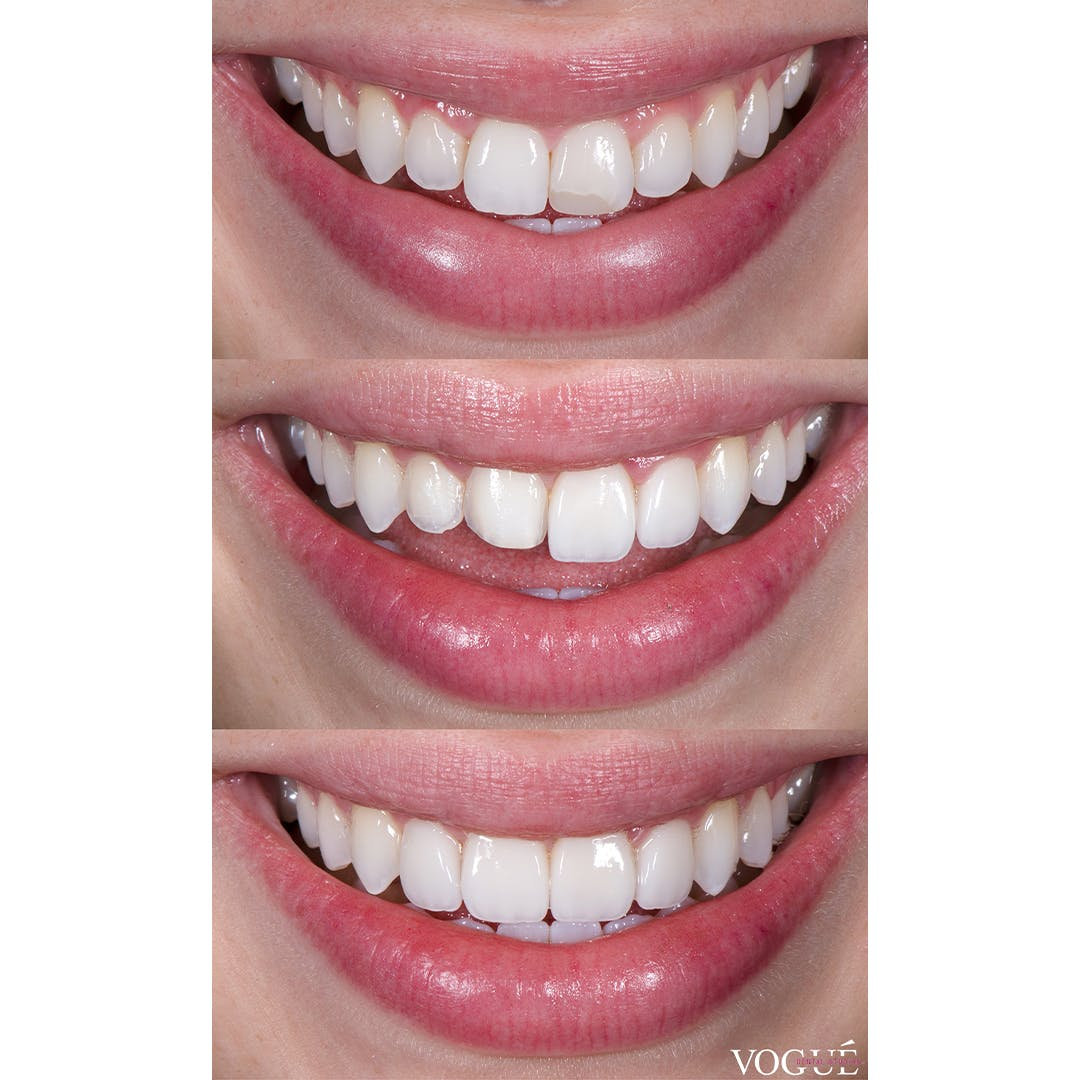 In progress comparison of porcelain veneers and the amount of teeth shaving required for specific outcomes.