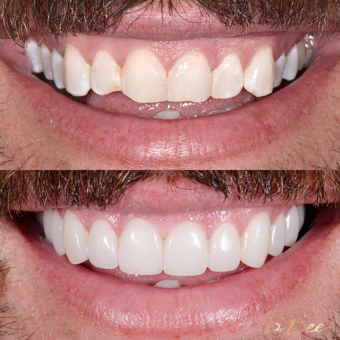 Sandor Earl's smile before and after porcelain veneers with minimal teeth filing/shaving.