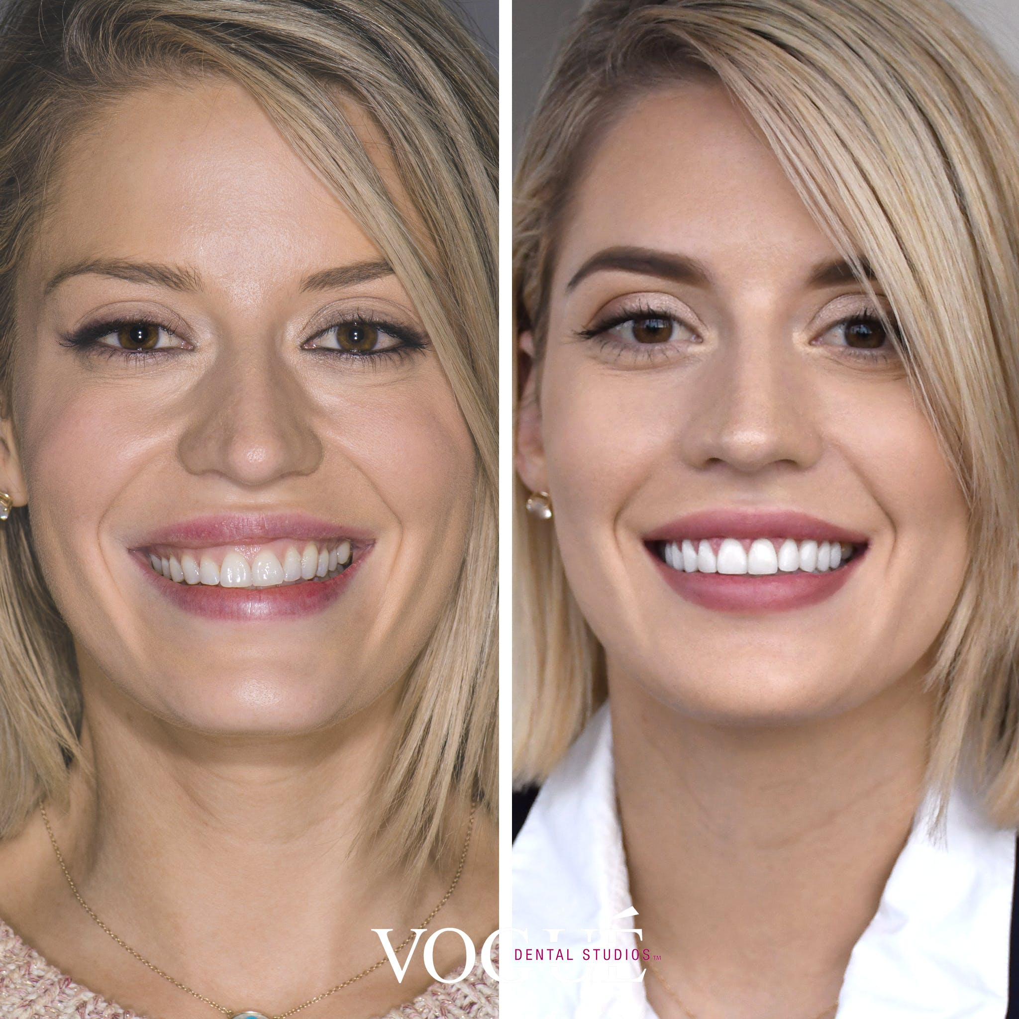 Before and after a canted smile or skewed smile treated with porcelain veneers and gum laser surgery.