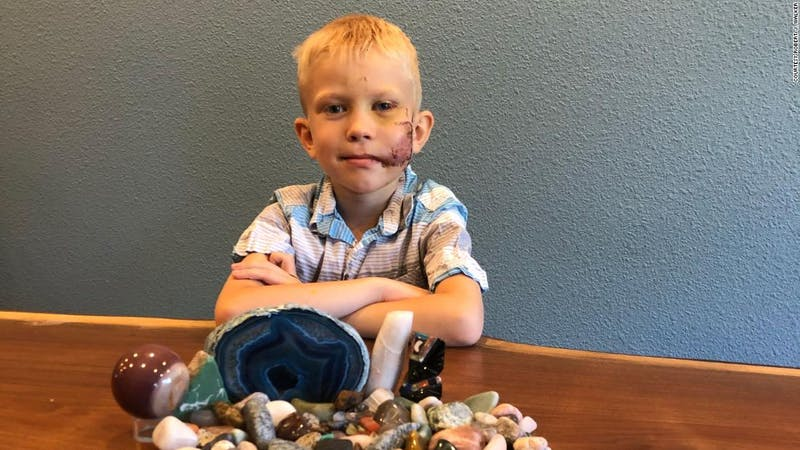 Bridger Walker, the young 6-year-old boy that saved his sister from dog attack