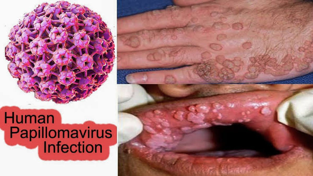 Genital human papillomavirus symptoms