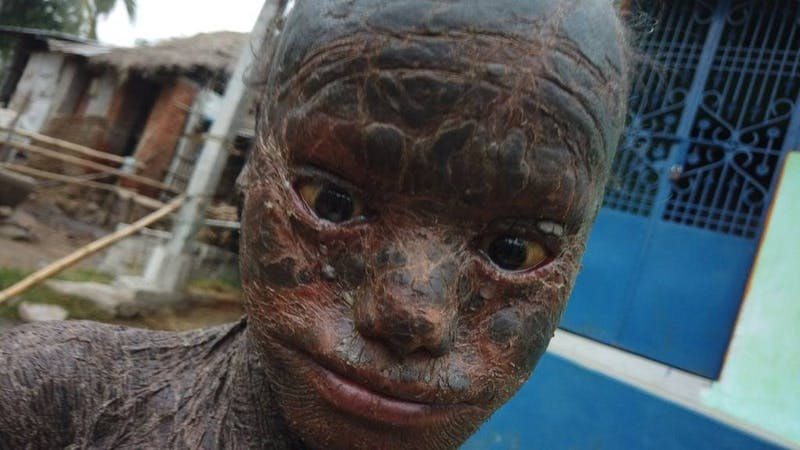 """Jagannath, an Indian boy dubbed, """"snake skin"""" because he has the rare skin condition called lamellar ichthyosis"""