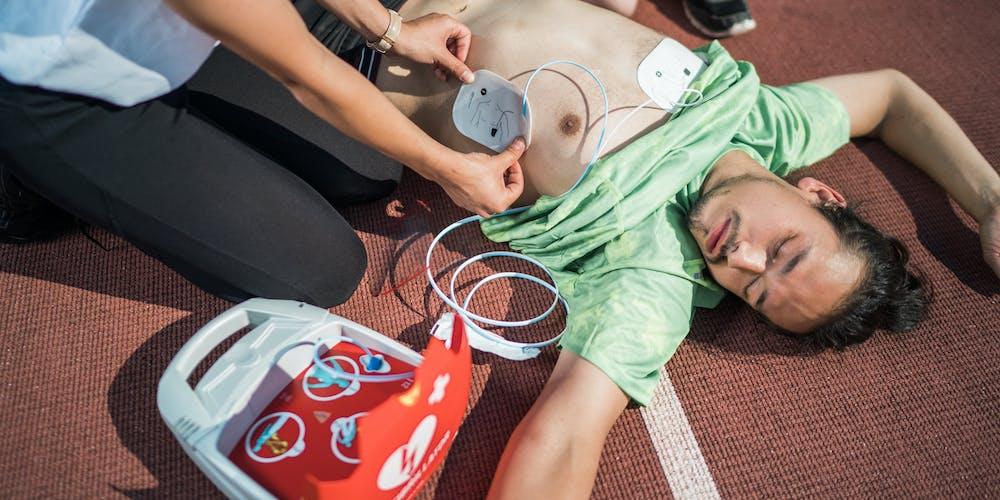 posizione piastre defibrillatore