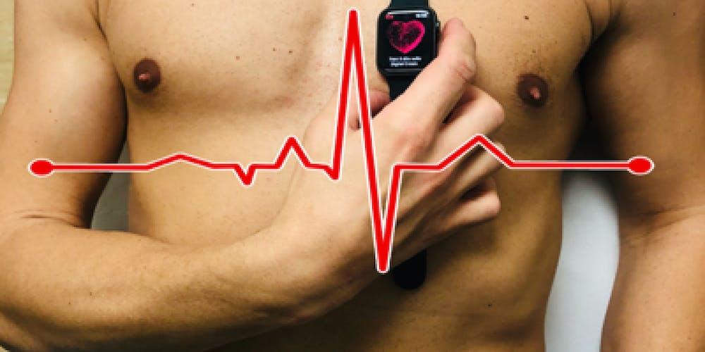 smartwatch infarto