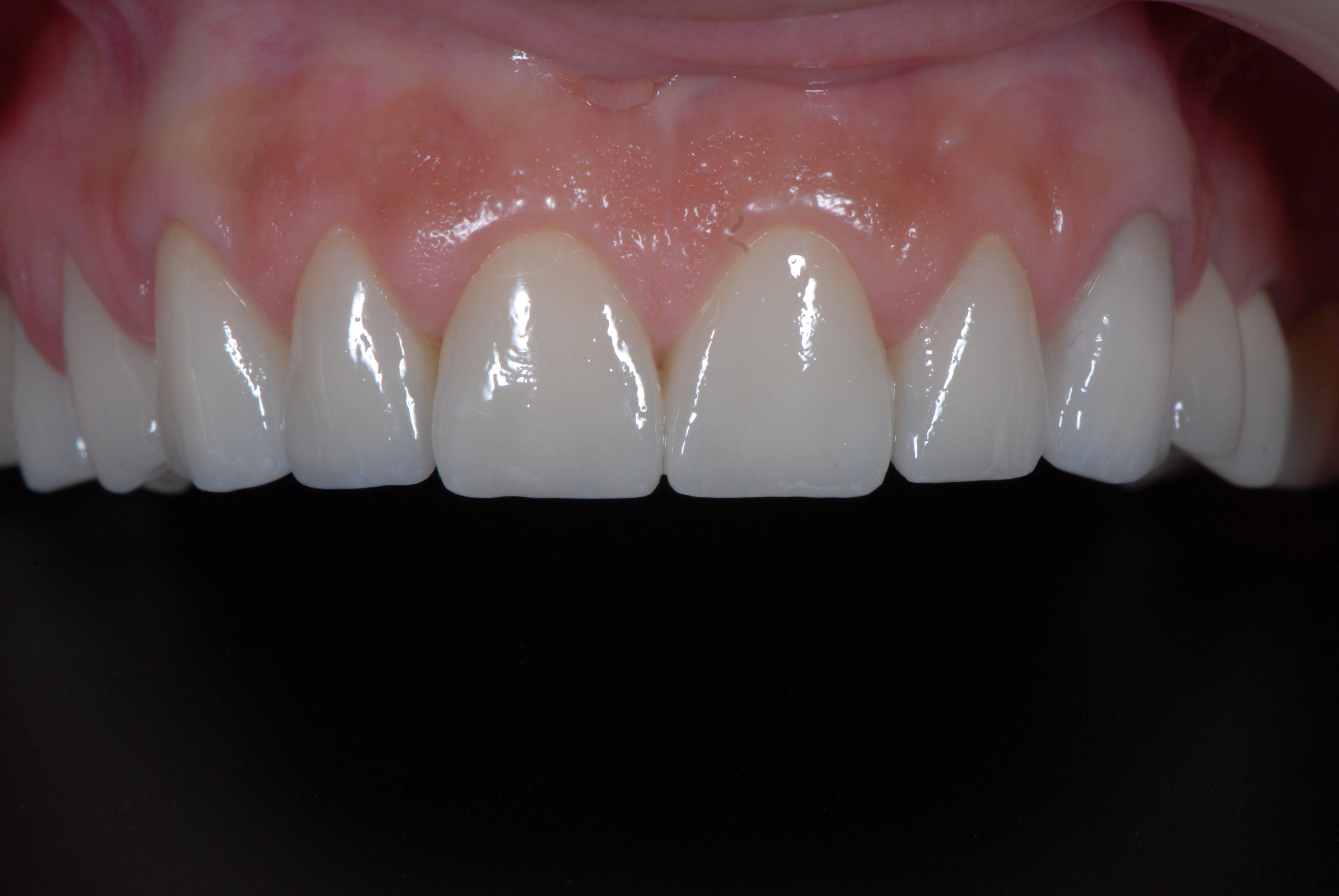 Fațete dentare Dentoart Galați
