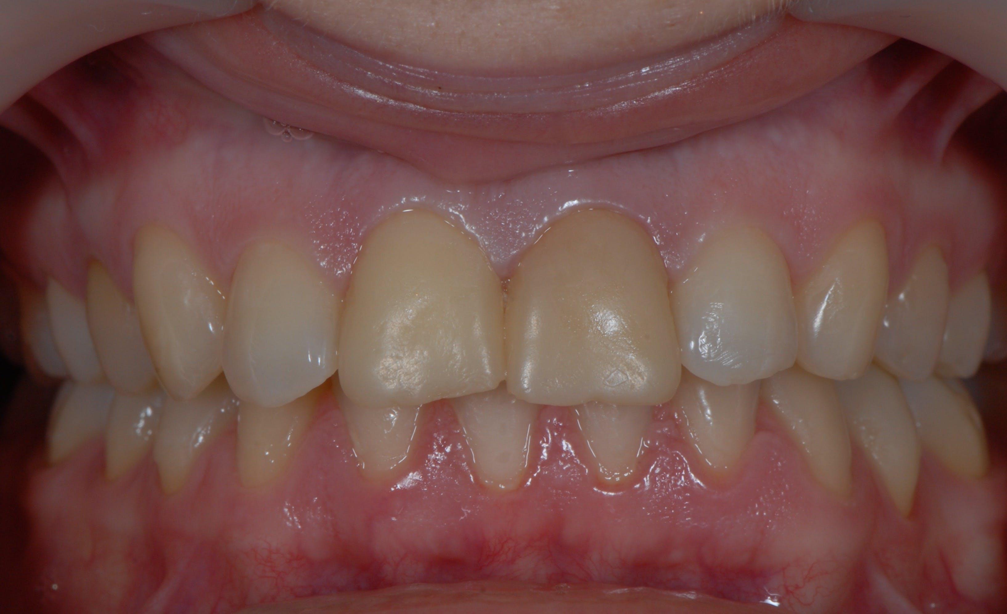 Fațete dentare DentoArt Galați Etapa 1
