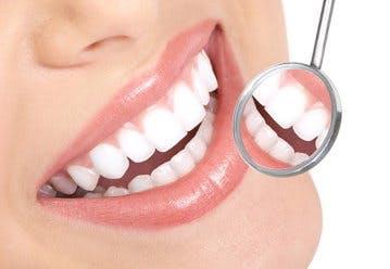 Albire dentară DentoArt Galați