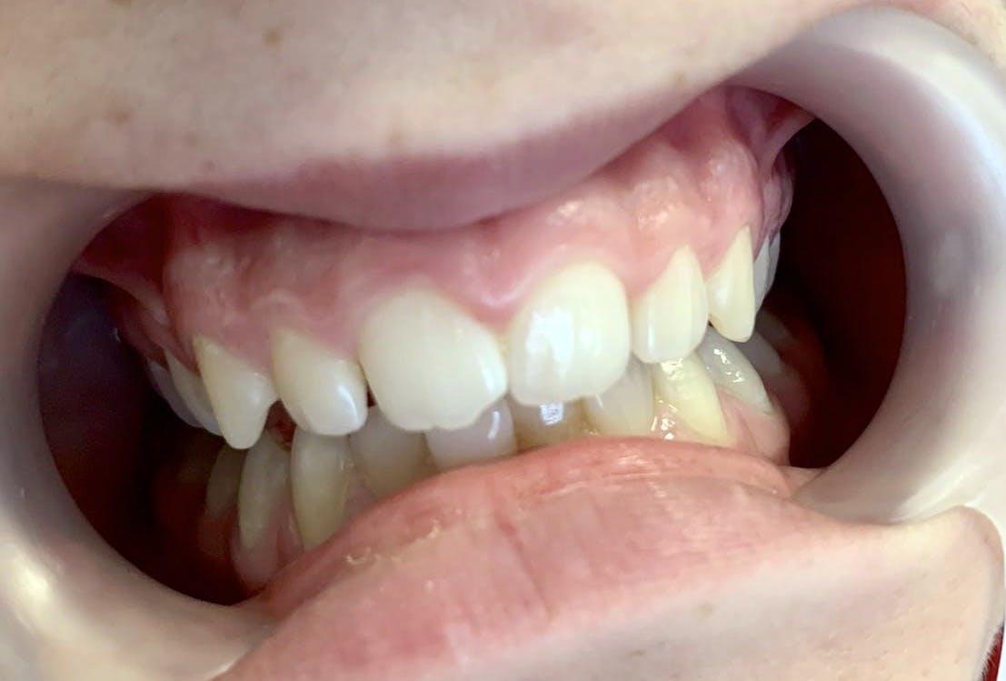 Tratamente stomatologice copii Galați