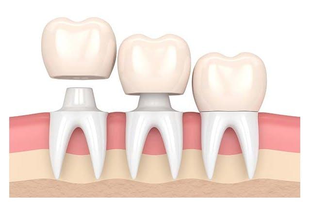 Coroane dentare Galați