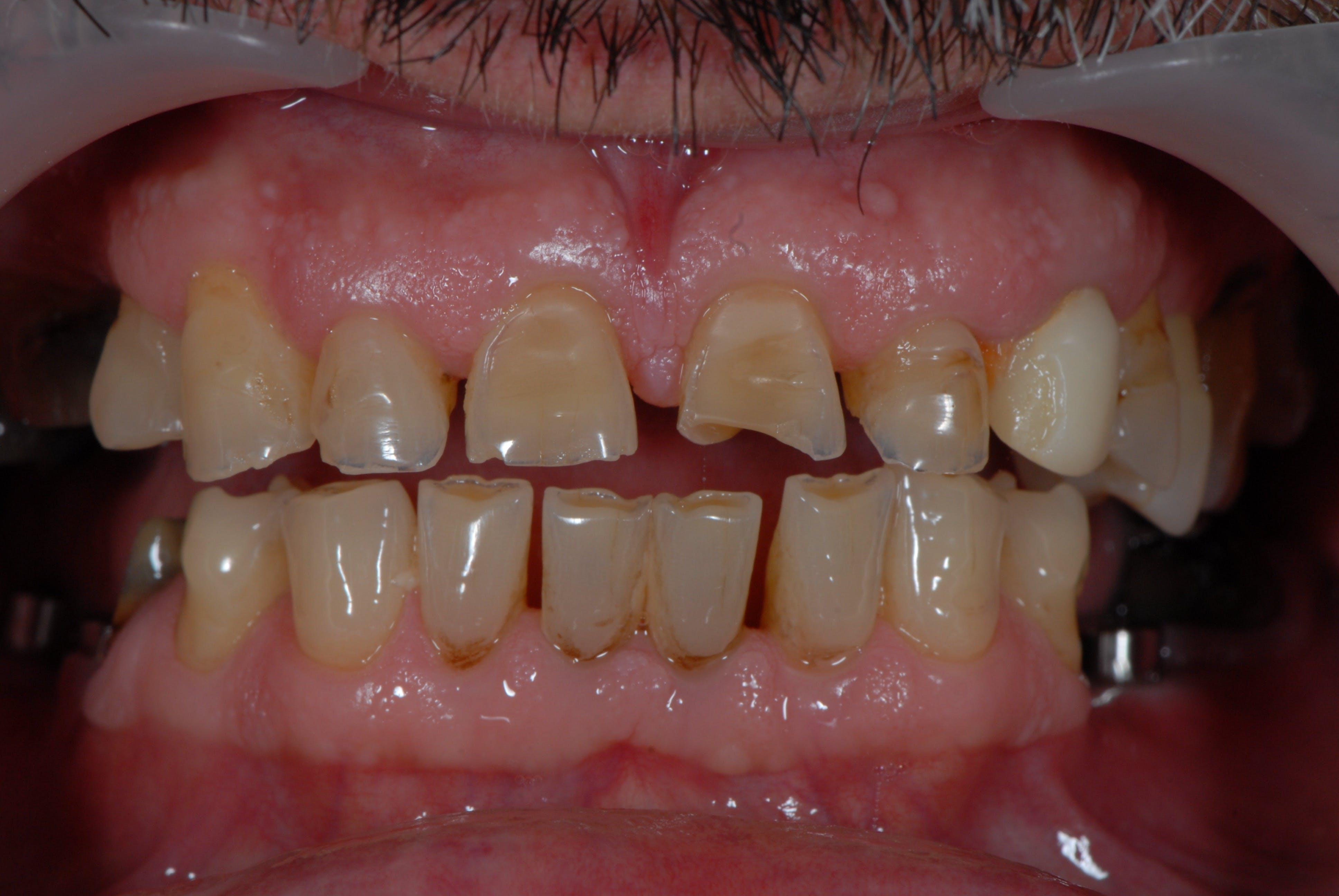Fațete dentare DentoArt Galați Cazuri