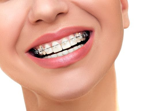 Aparat dentar Galați