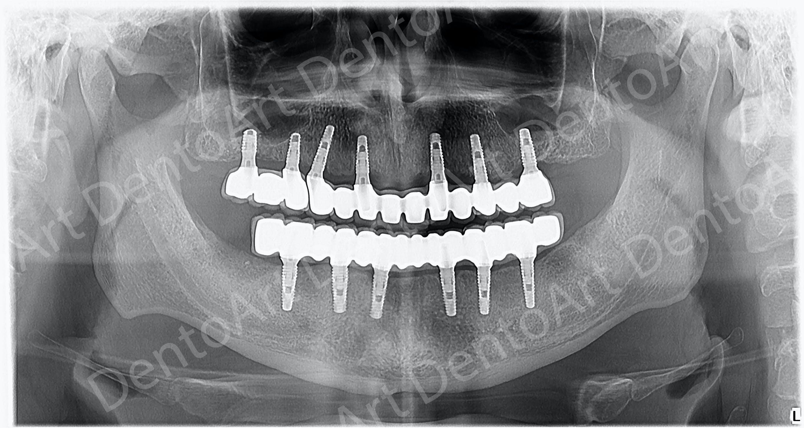 Reabilitare complexă pe implanturi realizată la DentoArt Galati în 24 de ore