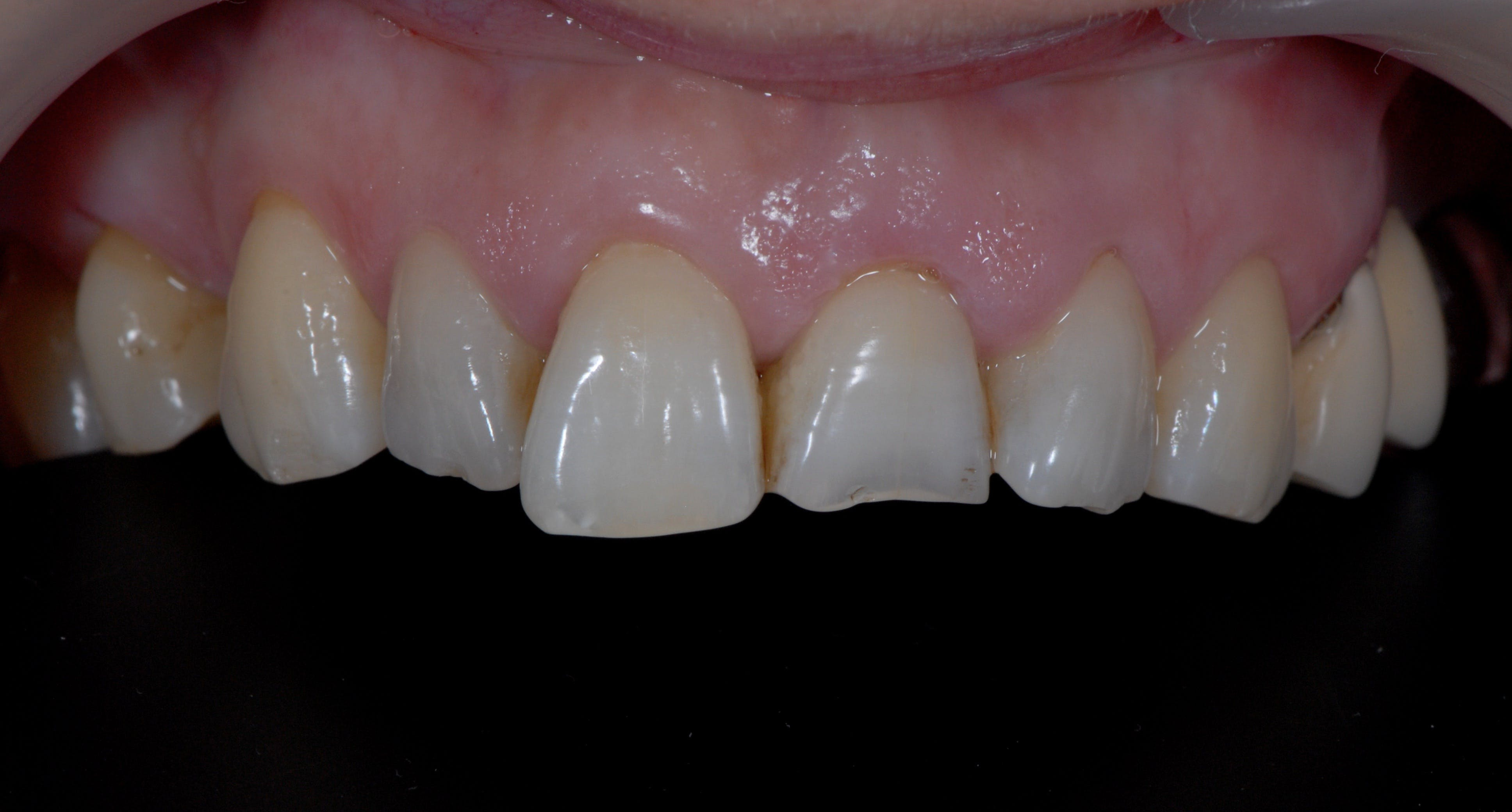 Fațete dentare Galați Etapa 1