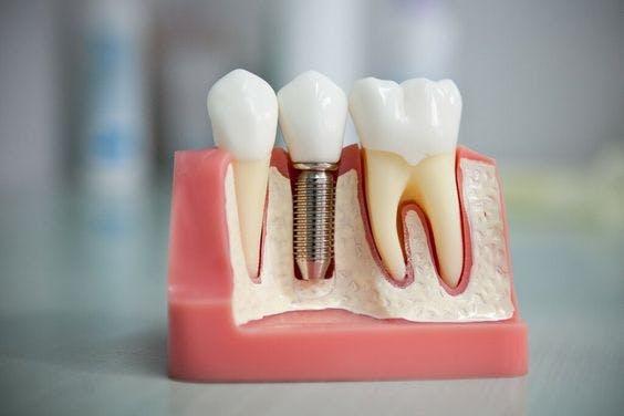 Implanturi dentare DentoArt Galați