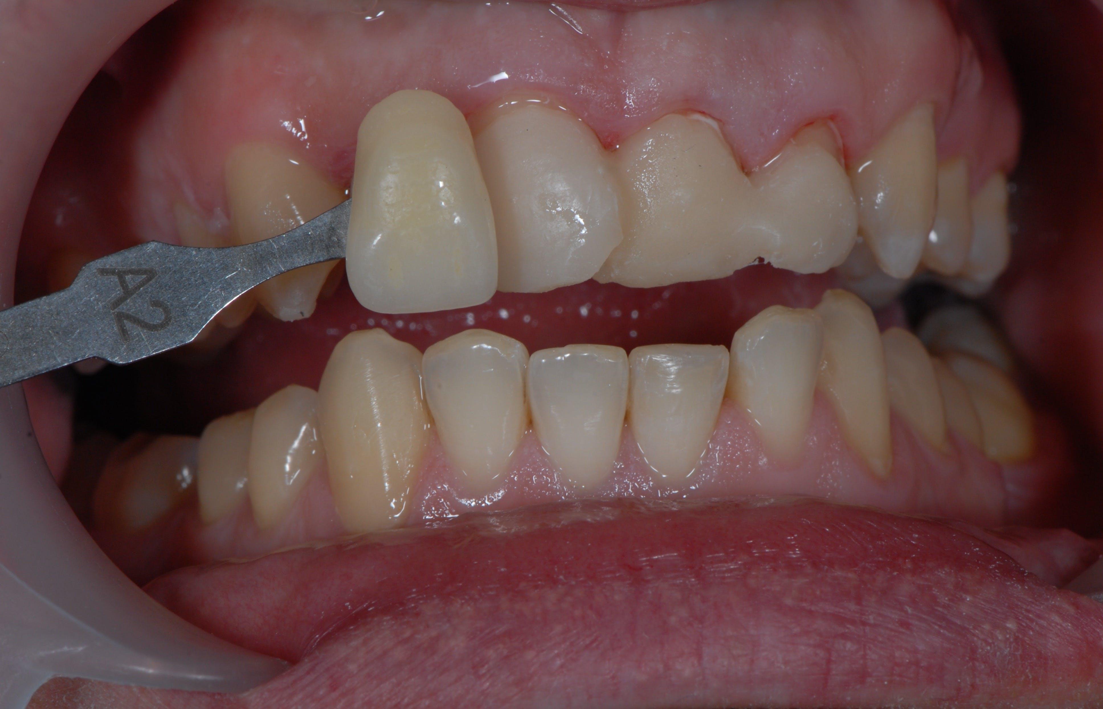 Fațete dentare Etapa 2