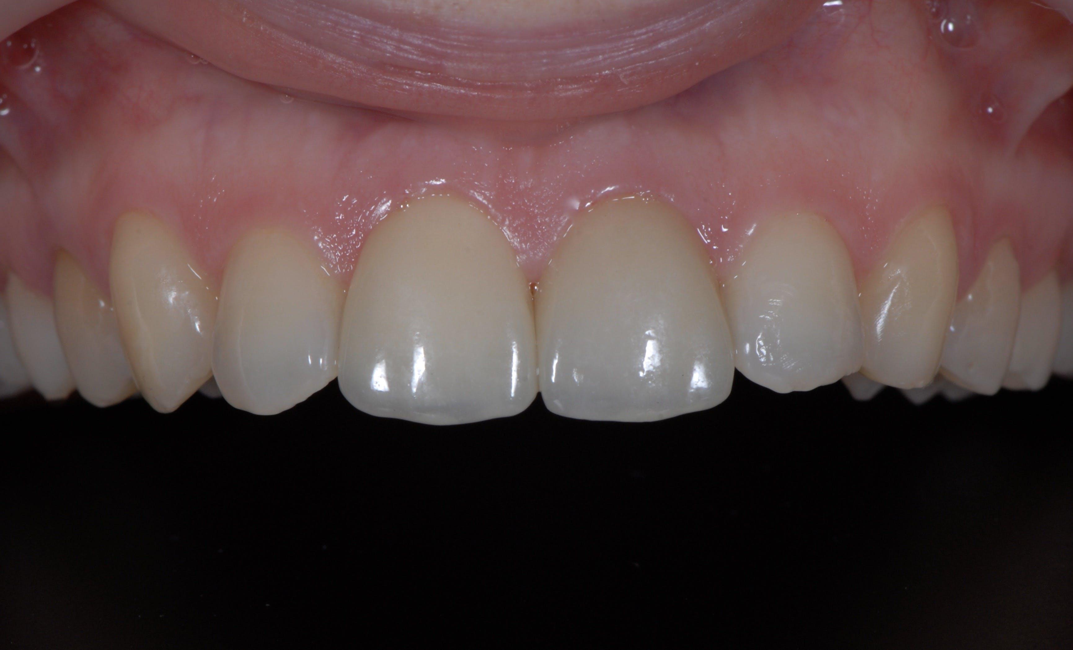 Fațete dentare DentoArt Galați Etapa 2