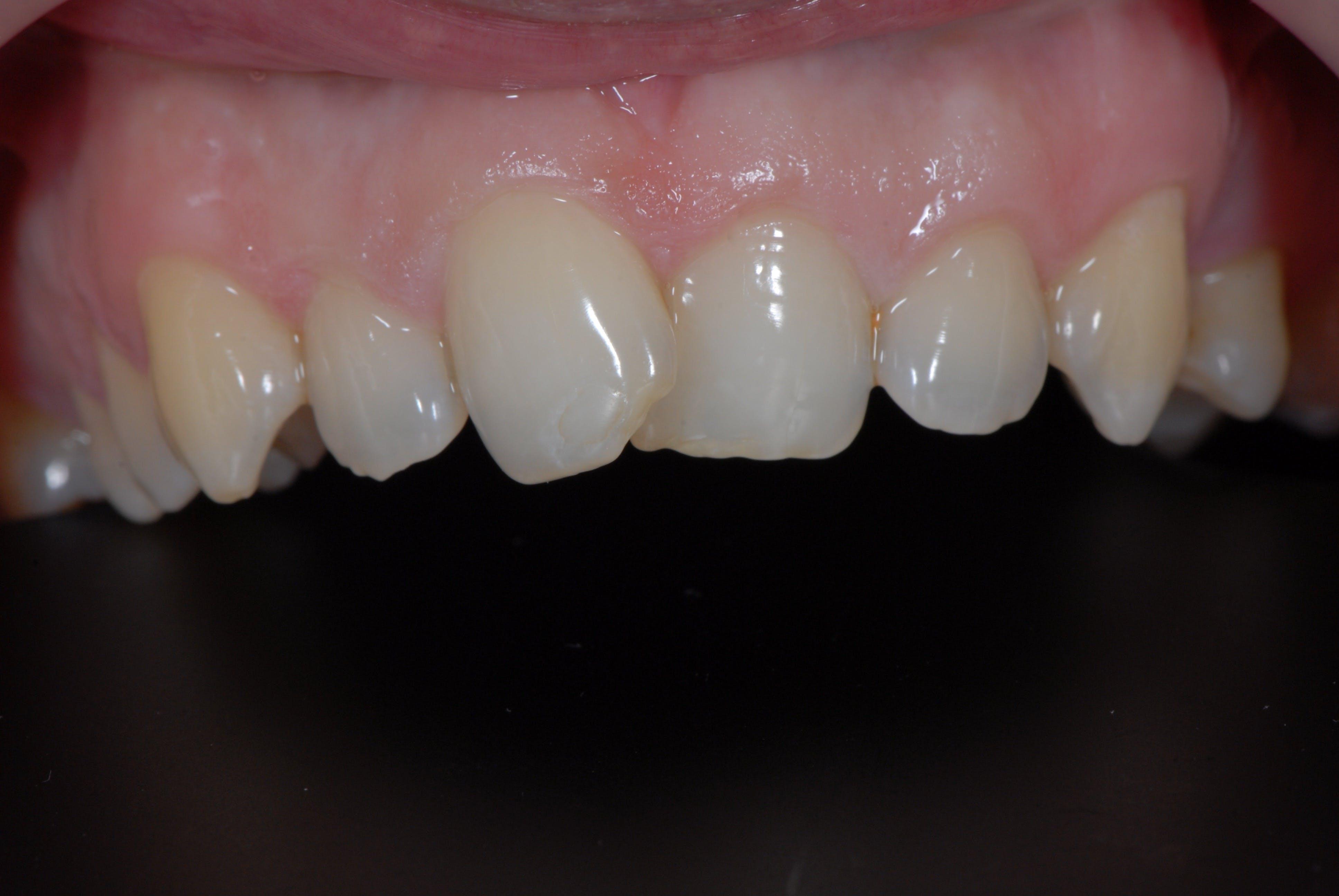 Fatete dentare DentoArt Etapa 1