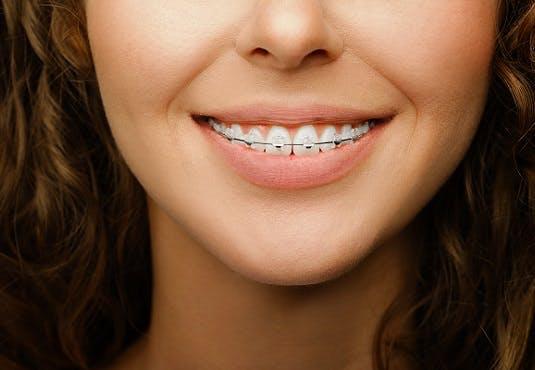 Quelle mutuelle rembourse l'orthodontie ?