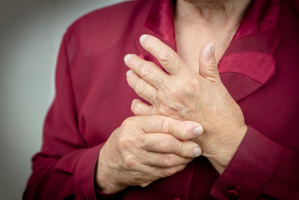 Cos'è l'artrite reumatoide? Ecco sintomi e cure