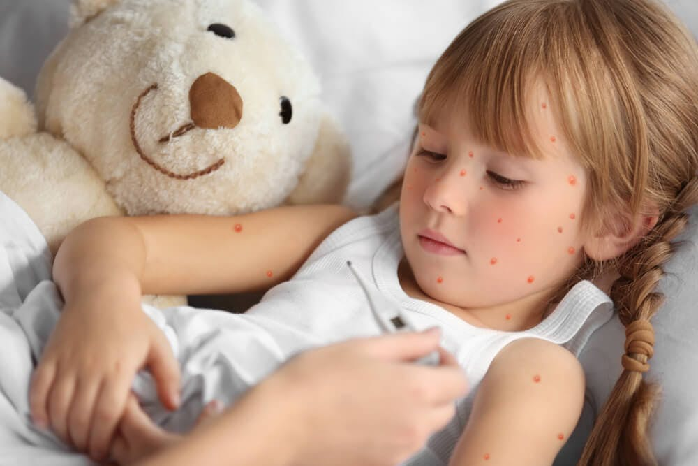 Varicella nei bambini: come si contagia? Sintomi e cure