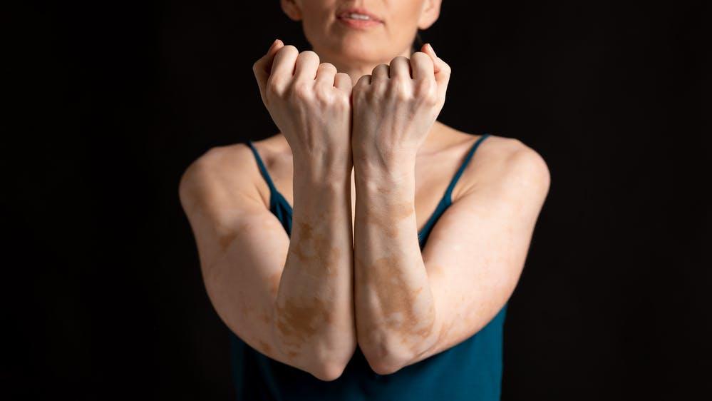Malattie autoimmuni: quali sono e come riconoscerle