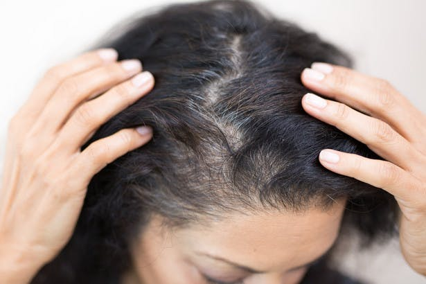 Image of woman's gray roots on dark hair color