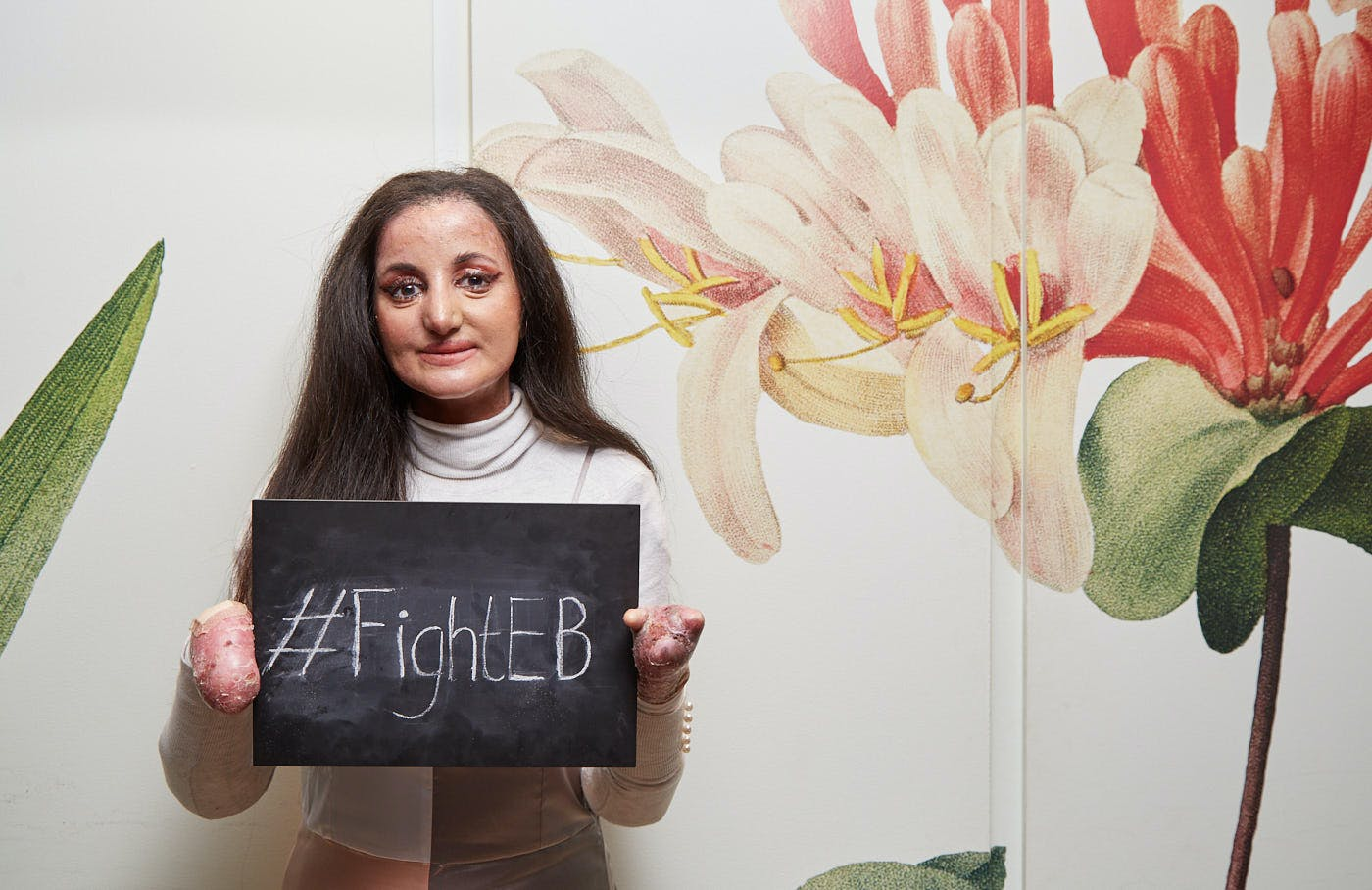 A girl holding a chalk board sign saying '#FightEB'. She is standing in front of a wall with a large flower design.