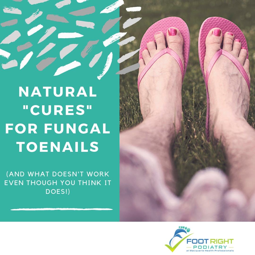"""Natural """"cures"""" for fungal nails (and"""
