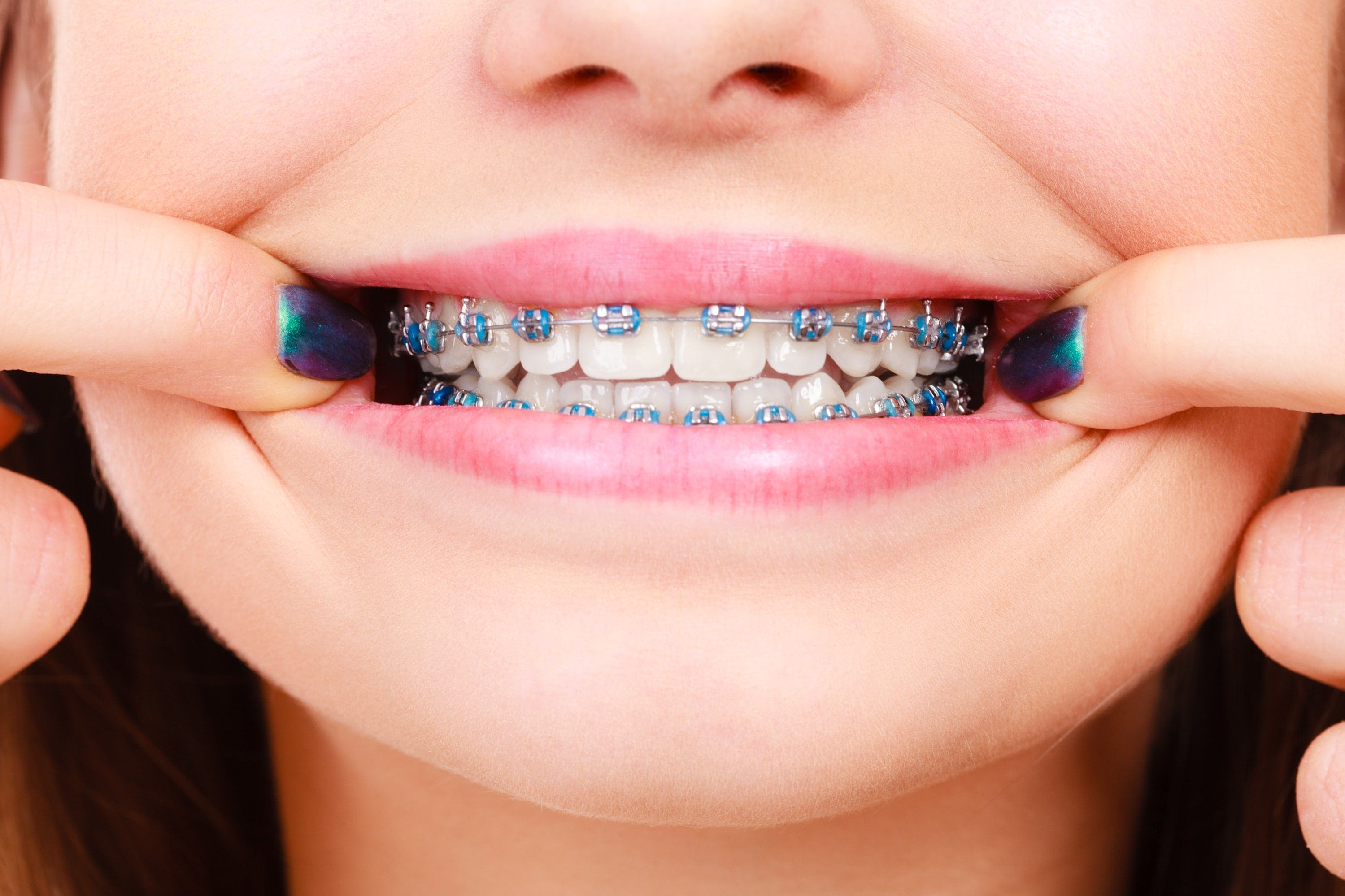 Close up of girl smiling with braces
