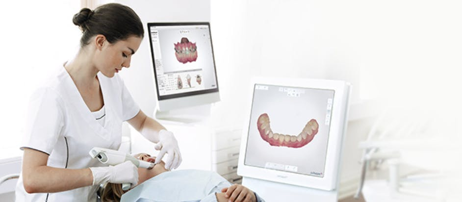 Intra-oral Scanner