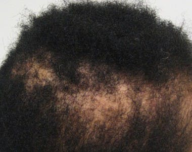african hair loss treatment