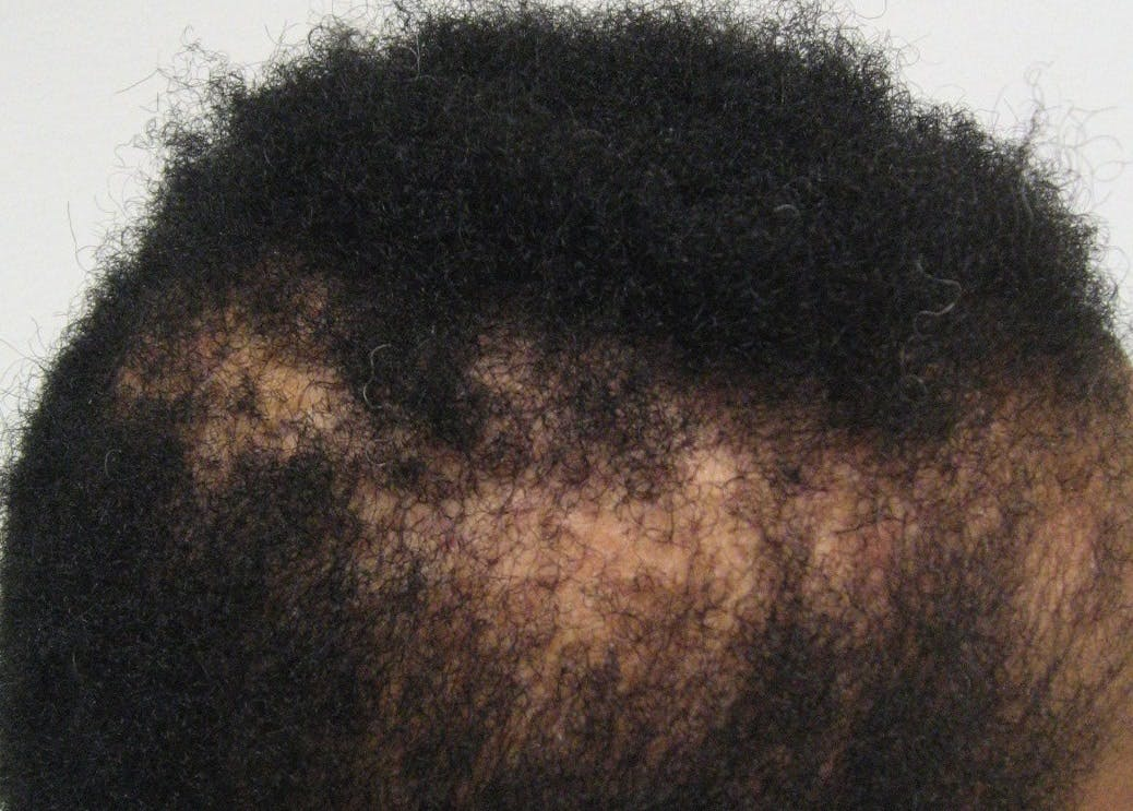 how to treat dry, itchy scalp black hair