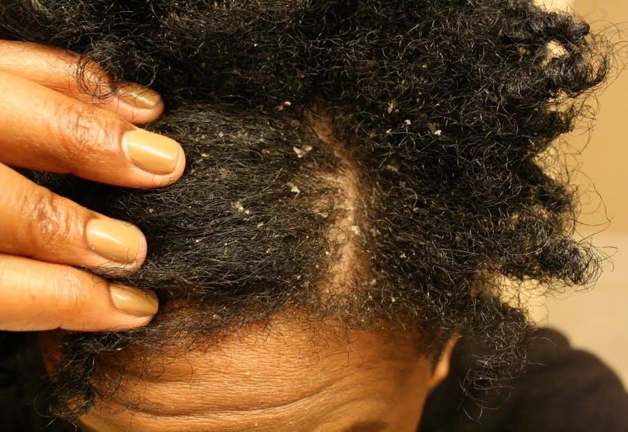 afro hair dandruff