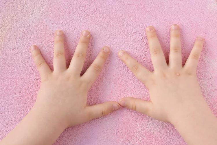 Två händer med vårtor