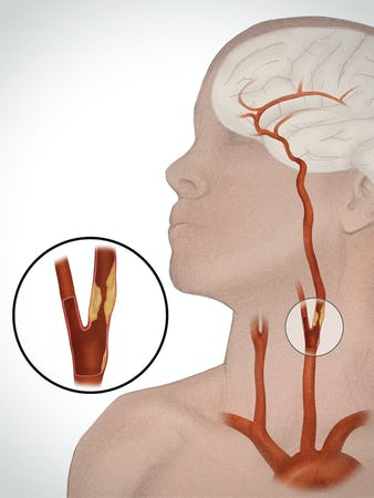 Ateroscleroza carotidiană – cauze, simptome, tratament