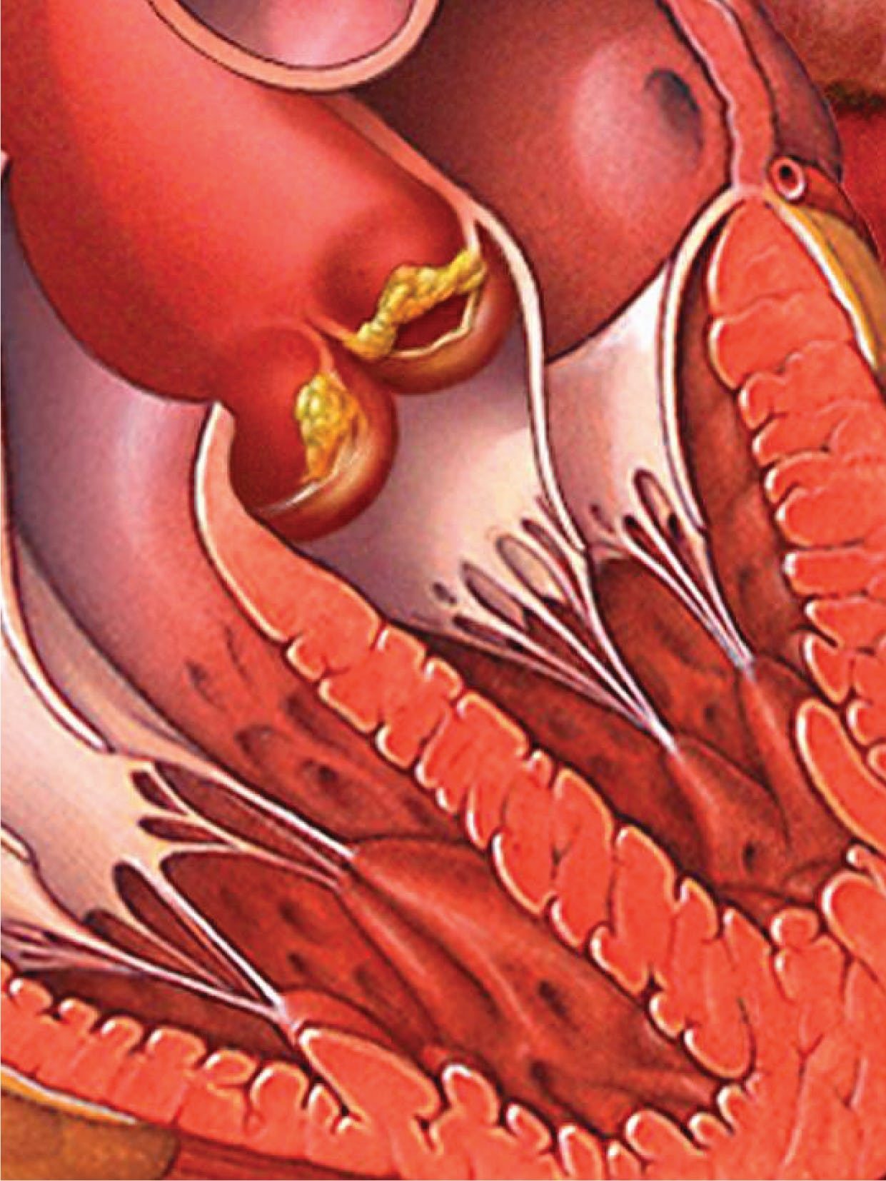 Endocardita - cauze, simptome, tratament