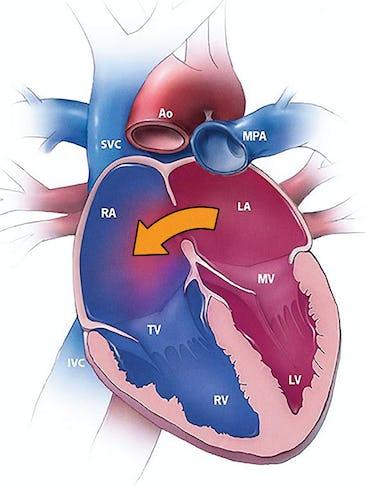 Malformațiile cardiace congenitale. Care sunt cele mai frecvente malformații care pot fi tratate fără operație