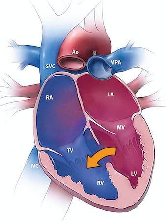 Defectul septal ventricular (DSV) - cauze, simptome și tratament