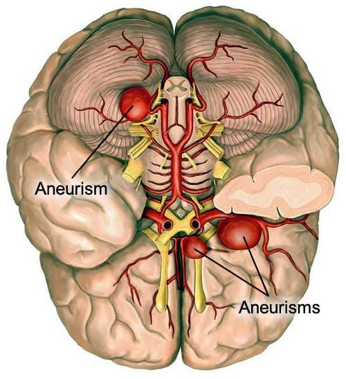 test de vedere asupra creierului