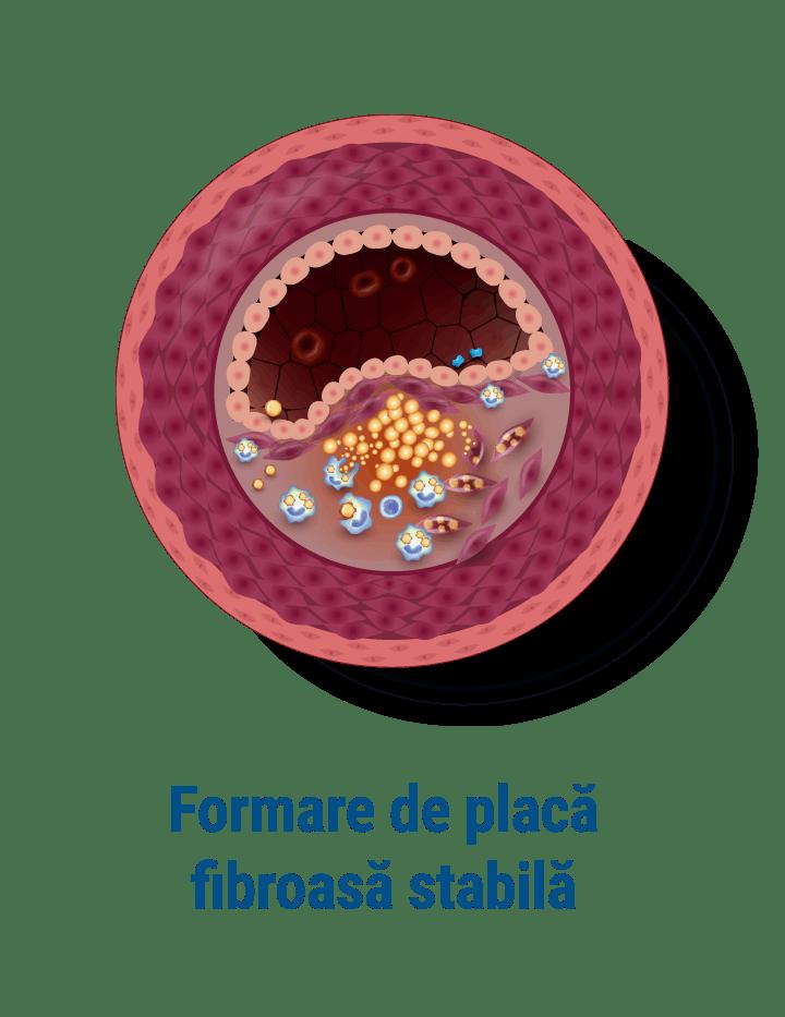 Formare de plac fibroasa