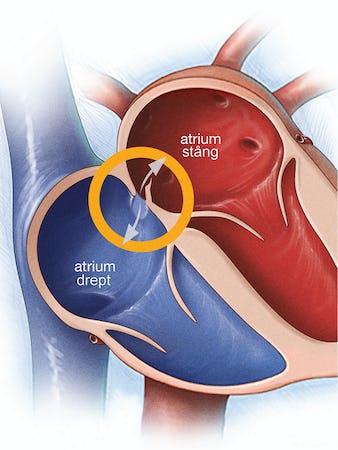 Foramen ovale patent - Cauze, simptome și tratament