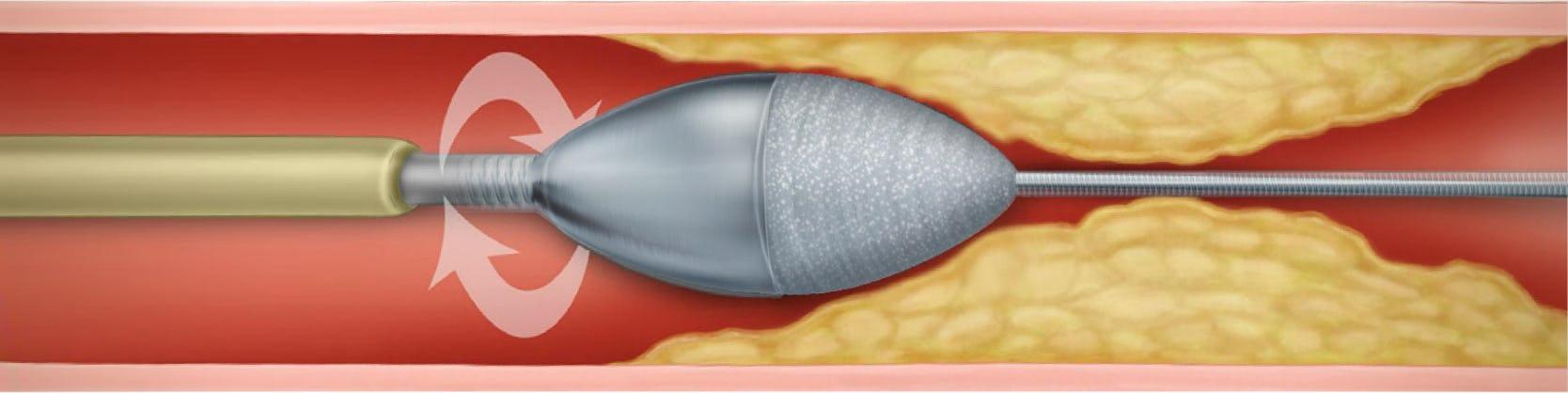 Rotablație | Centrele Ares | Inovatie in Cardiologie