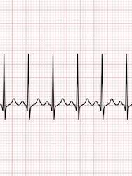 Tot ce trebuie să știi despre pulsul cardiac